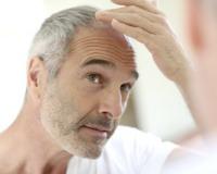 Haartransplantation bei Männern